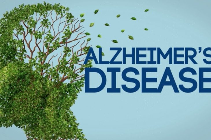 Treating Alzheimer Disease Costs Two Million Dollars Annually- Expert