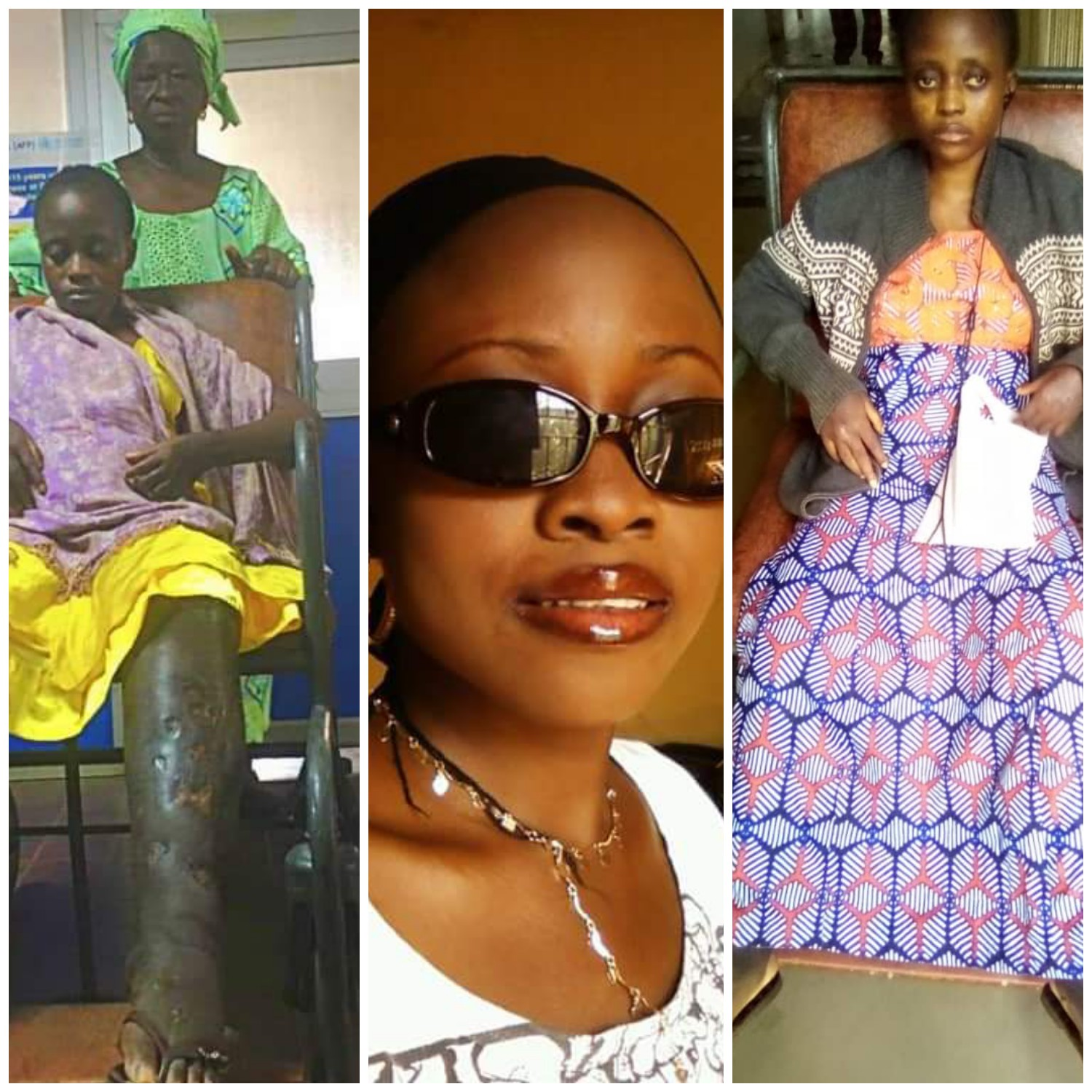 Why I Attempted Suicide Three Times –Sickle Cell Patient